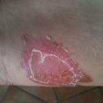 megégett bőr kezelése