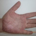 pikkelysömörös kéz