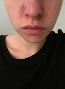 aknés bőr
